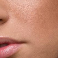 Best 5 Natural Ways to Tighten Pores and Reduce Pore Size