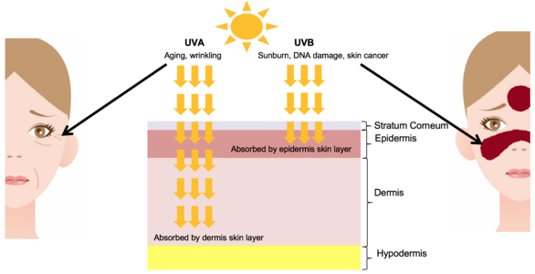 UV light skin damage diagram