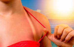 Bikini strap sunburn