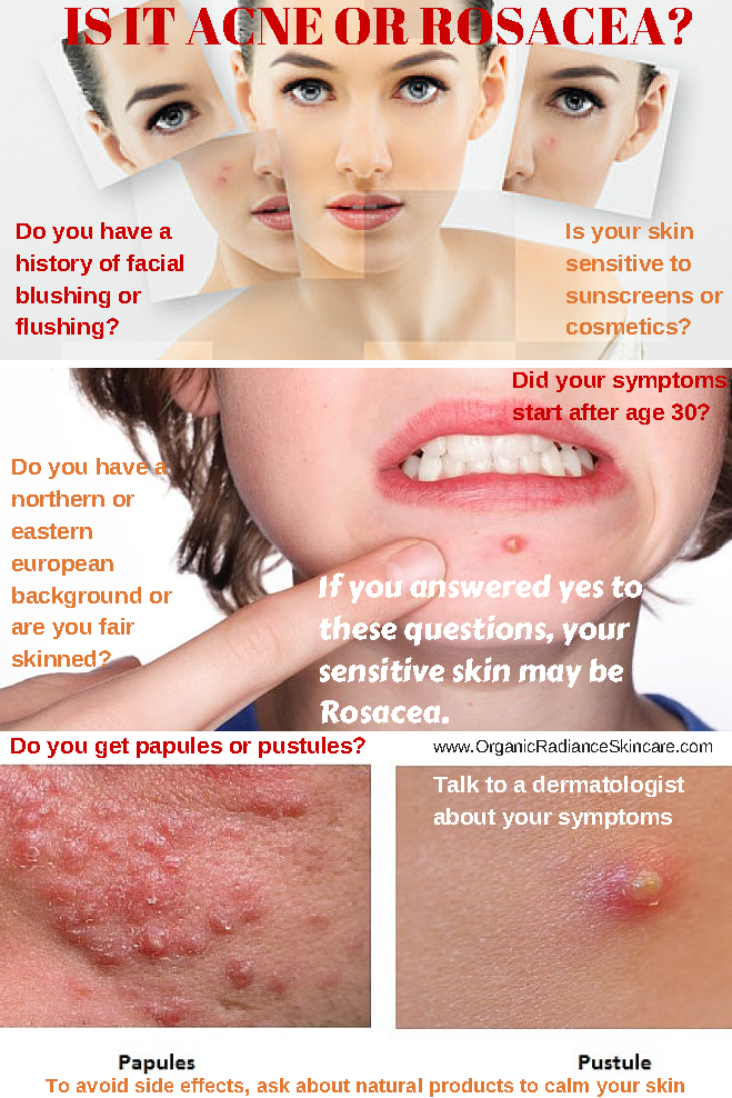 acne rosacea symptoms